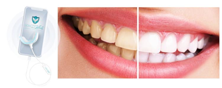 Mobile White Teeth Whitening - ça marche? Résumé.